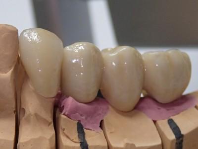 Ada_Dental_Labor_FestsitzenderZahnersatz_Brücke,-Implant