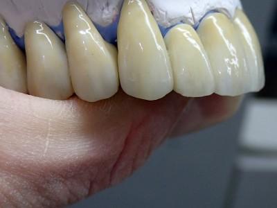 Ada_Dental_Labor_FestsitzenderZahnersatz_P2030007