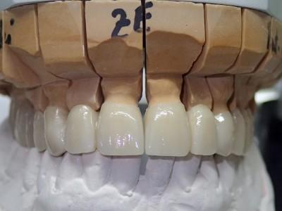 Ada_Dental_Labor_FestsitzenderZahnersatz_P2250082