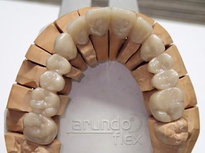 Ada_Dental_Labor_FestsitzenderZahnersatz_P2250083