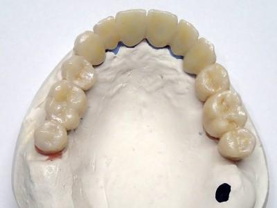 Ada_Dental_Labor_FestsitzenderZahnersatz_P2270001
