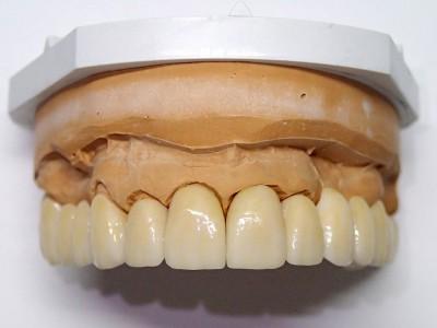 Ada_Dental_Labor_FestsitzenderZahnersatz_PC100016