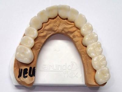 Ada_Dental_Labor_FestsitzenderZahnersatz_PC100017