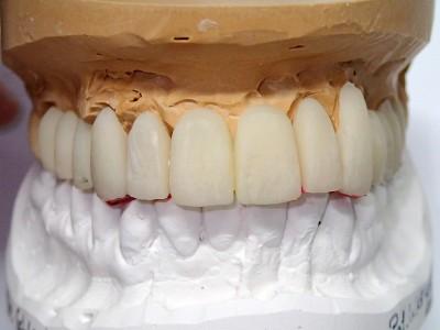 Ada_Dental_Labor_FestsitzenderZahnersatz_PC190006
