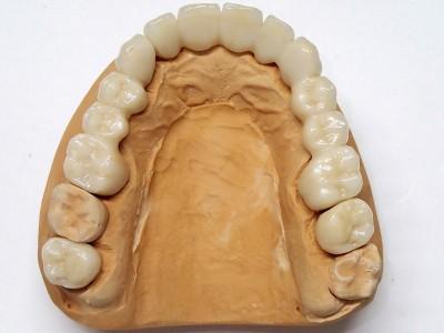 Ada_Dental_Labor_FestsitzenderZahnersatz_PC190007