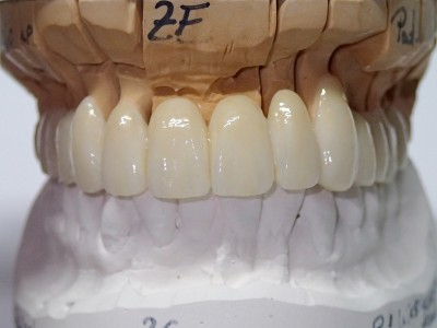 Ada_Dental_Labor_FestsitzenderZahnersatz_PC200007