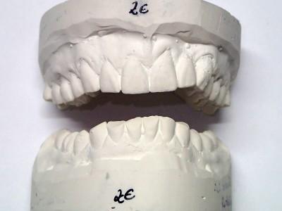 Ada_Dental_Labor_FestsitzenderZahnersatz_Planung
