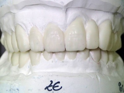 Ada_Dental_Labor_FestsitzenderZahnersatz_Wax--Up-OK-
