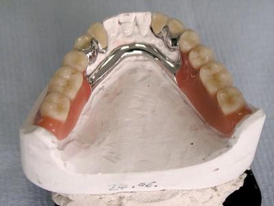Ada_Dental_Labor_KombinierterZahnersatz_15