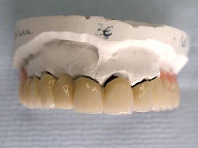Ada_Dental_Labor_KombinierterZahnersatz_P1010010