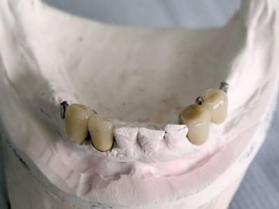 Ada_Dental_Labor_KombinierterZahnersatz_P1010012
