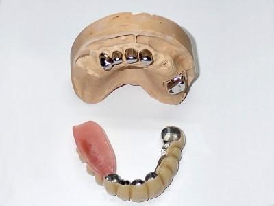 Ada_Dental_Labor_KombinierterZahnersatz_PB110003