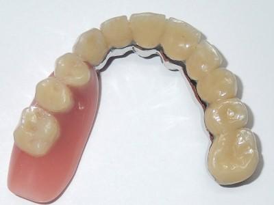 Ada_Dental_Labor_KombinierterZahnersatz_PB110005