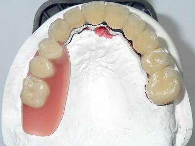 Ada_Dental_Labor_KombinierterZahnersatz_PB110006