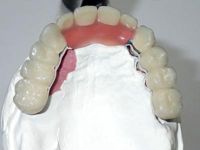 Ada_Dental_Labor_KombinierterZahnersatz_PB120012