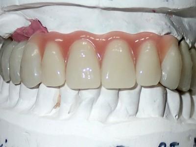 Ada_Dental_Labor_KombinierterZahnersatz_PB120013